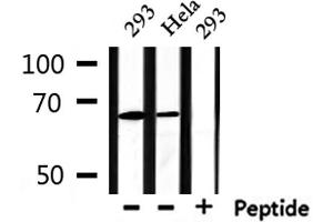 Image no. 4 for anti-Protein Inhibitor of Activated STAT, 2 (PIAS2) antibody (ABIN6264196)