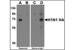 Western Blotting (WB) image for anti-Seasonal H1N1 Hemagglutinin antibody (ABIN500694)