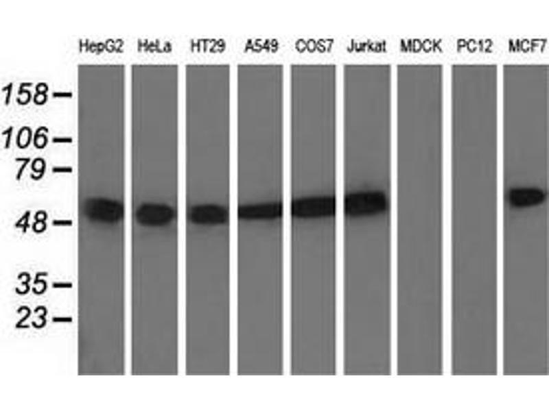 Western Blotting (WB) image for anti-Tubulin, alpha 8 (TUBA8) antibody (ABIN2453759)