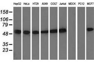 Western Blotting (WB) image for anti-TUBA8 Antikörper (Tubulin, alpha 8) (ABIN2453759)