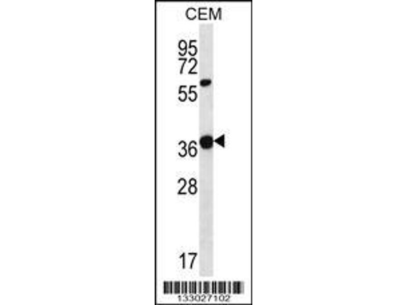 Western Blotting (WB) image for anti-WNT16 antibody (Wingless-Type MMTV Integration Site Family, Member 16) (C-Term) (ABIN2494145)
