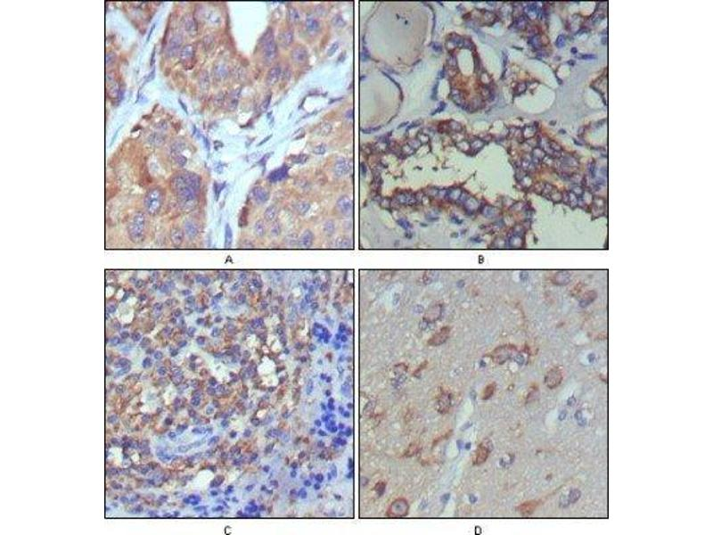 Immunohistochemistry (Paraffin-embedded Sections) (IHC (p)) image for anti-Wingless-Type MMTV Integration Site Family, Member 5A (WNT5A) antibody (ABIN449945)