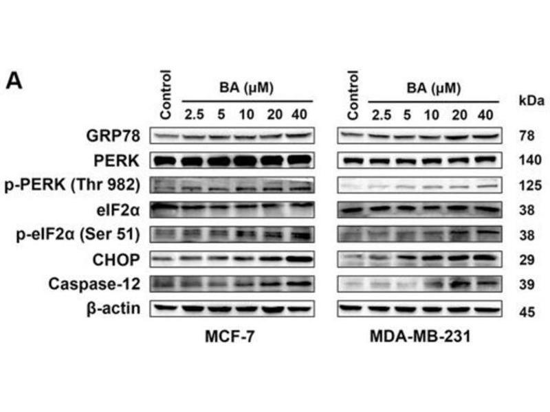 Western Blotting (WB) image for anti-Eukaryotic Translation Initiation Factor 2A, 65kDa (EIF2A) (pSer51) antibody (ABIN6255389)
