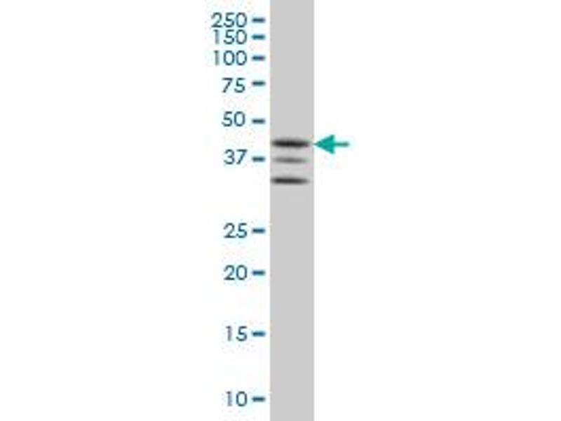 Western Blotting (WB) image for anti-Mitogen-Activated Protein Kinase-Activated Protein Kinase 2 (MAPKAPK2) (AA 302-400), (partial) antibody (ABIN563999)