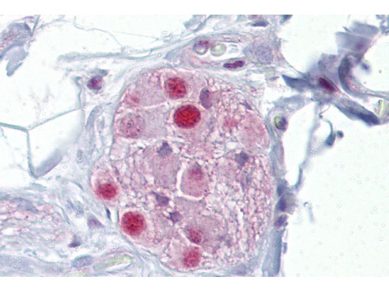 Immunohistochemistry (IHC) image for anti-Nuclear Receptor Subfamily 3, Group C, Member 1 (Glucocorticoid Receptor) (NR3C1) (N-Term) antibody (ABIN2782262)