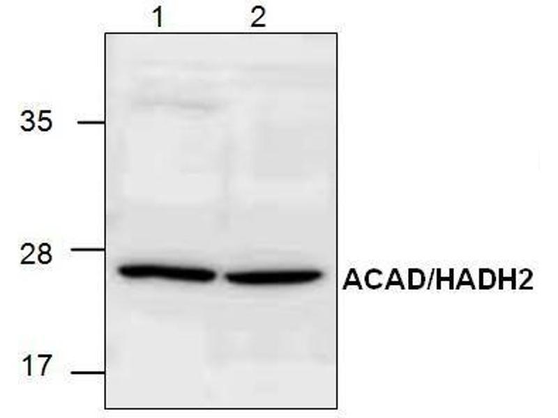 17 beta hydroxysteroid dehydrogenase iii deficiency