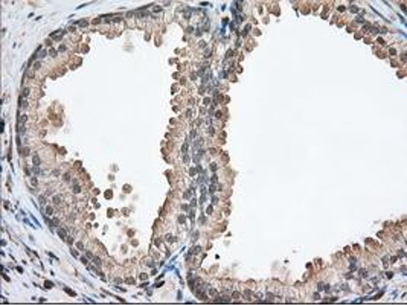 Immunohistochemistry (IHC) image for anti-Profilin 1 (PFN1) antibody (ABIN2453454)