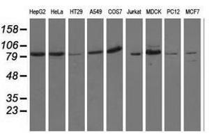 Image no. 2 for anti-Oxysterol Binding Protein-Like 11 (OSBPL11) antibody (ABIN1499923)