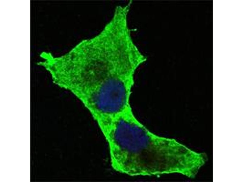 Image no. 3 for anti-Death-Domain Associated Protein (DAXX) antibody (ABIN1576024)