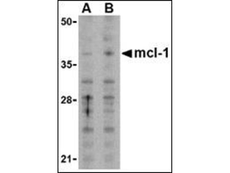 Western Blotting (WB) image for anti-MCL-1 antibody (Induced Myeloid Leukemia Cell Differentiation Protein Mcl-1) (N-Term) (ABIN500254)