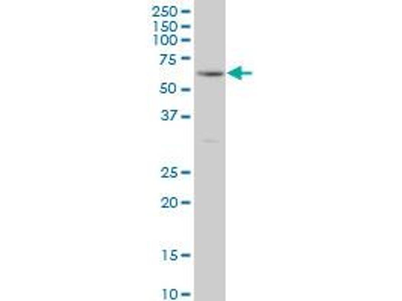 Western Blotting (WB) image for anti-Receptor-Interacting Serine-threonine Kinase 2 (RIPK2) (AA 431-540) antibody (ABIN522206)