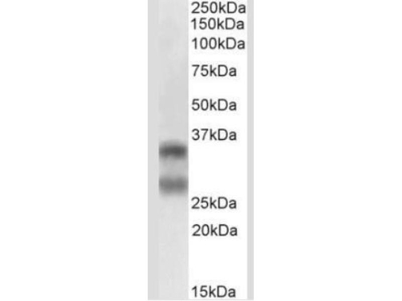 Western Blotting (WB) image for anti-TNFSF11 antibody (Tumor Necrosis Factor (Ligand) Superfamily, Member 11) (AA 1-317) (ABIN252476)