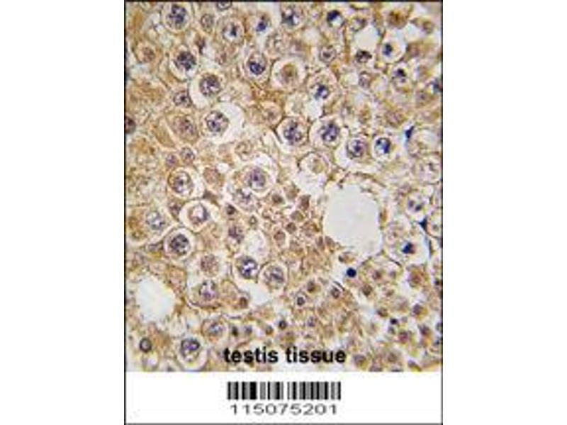 Immunohistochemistry (IHC) image for anti-M6PR antibody (Mannose-6-Phosphate Receptor (Cation Dependent)) (AA 35-63) (ABIN389291)