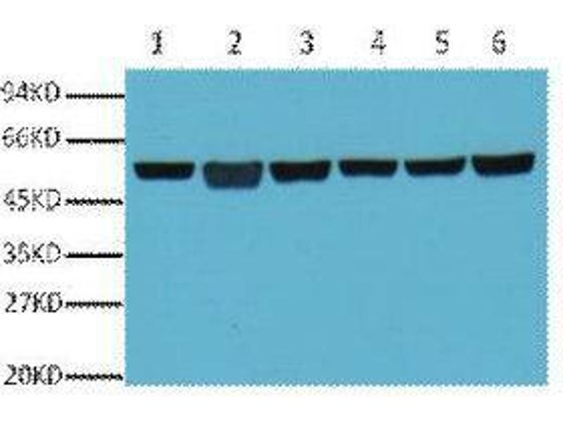 Western Blotting (WB) image for anti-Tubulin, beta (TUBB) antibody (ABIN3181102)