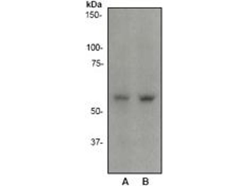 Western Blotting (WB) image for anti-SGK1 antibody (serum/glucocorticoid Regulated Kinase 1) (ABIN258464)