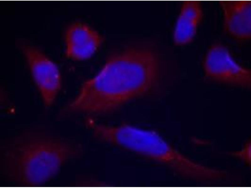 image for anti-ENOS antibody (Nitric Oxide Synthase 3 (Endothelial Cell)) (pSer1177) (ABIN319232)