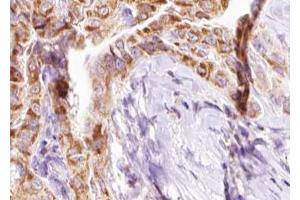 Image no. 3 for anti-BCL2-Interacting Killer (Apoptosis-Inducing) (BIK) (pThr33) antibody (ABIN6255669)