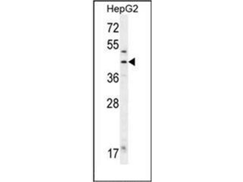 Western Blotting (WB) image for anti-FAH antibody (Fumarylacetoacetate Hydrolase (Fumarylacetoacetase)) (AA 14-41) (ABIN952405)