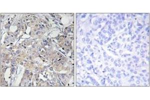 Image no. 1 for anti-Collagen, Type VI, alpha 3 (COL6a3) (AA 2261-2310) antibody (ABIN1534348)