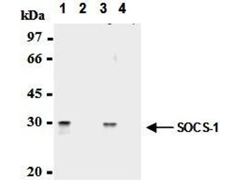 Immunoprecipitation (IP) image for anti-SOCS1 antibody (Suppressor of Cytokine Signaling 1) (AA 2-78) (ABIN1504154)