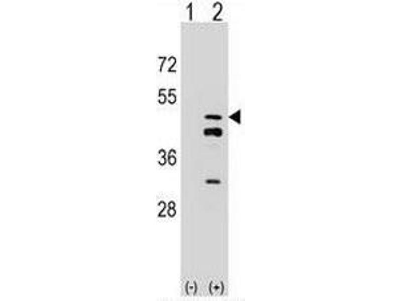 Western Blotting (WB) image for anti-Farnesyl Diphosphate Synthase (FDPS) (AA 53-82), (N-Term) antibody (ABIN952387)