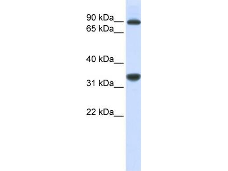 Western Blotting (WB) image for anti-Ribosomal RNA Processing 1 Homolog B (S. Cerevisiae) (RRP1B) (Middle Region) antibody (ABIN405769)