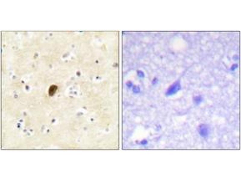 Immunohistochemistry (IHC) image for anti-GRIA4 Antikörper (Glutamate Receptor, Ionotrophic, AMPA 4) (pSer862) (ABIN1531604)