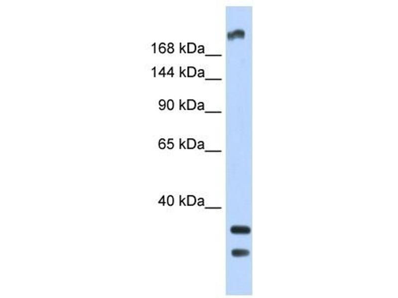 Image no. 2 for anti-Transient Receptor Potential Cation Channel, Subfamily M, Member 2 (TRPM2) (N-Term) antibody (ABIN635099)