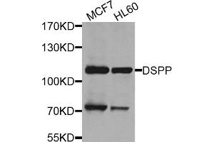 Image no. 1 for anti-Dentin Sialophosphoprotein (DSPP) antibody (ABIN6571738)
