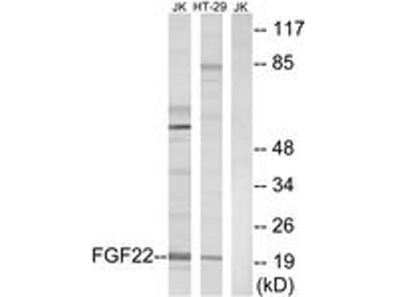 Western Blotting (WB) image for anti-Fibroblast Growth Factor 22 (FGF22) (AA 71-120) antibody (ABIN1534407)
