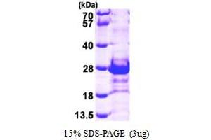 Image no. 1 for Calcyclin Binding Protein (CACYBP) (AA 1-185) protein (His tag) (ABIN667003)