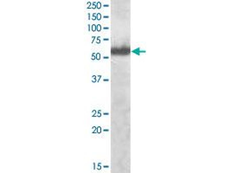 image for anti-Interferon Regulatory Factor 5 (IRF5) antibody (ABIN546910)