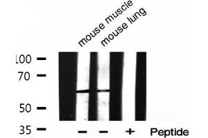 Image no. 4 for anti-Histone Deacetylase 2 (HDAC2) (pSer394) antibody (ABIN6256313)