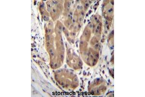 Image no. 1 for anti-Abhydrolase Domain Containing 2 (ABHD2) (AA 262-292), (Middle Region) antibody (ABIN950213)