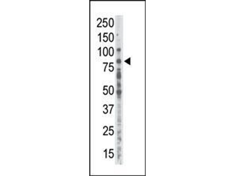 Western Blotting (WB) image for anti-Protein Kinase C, alpha (PKCa) (AA 299-329), (C-Term) antibody (ABIN391001)