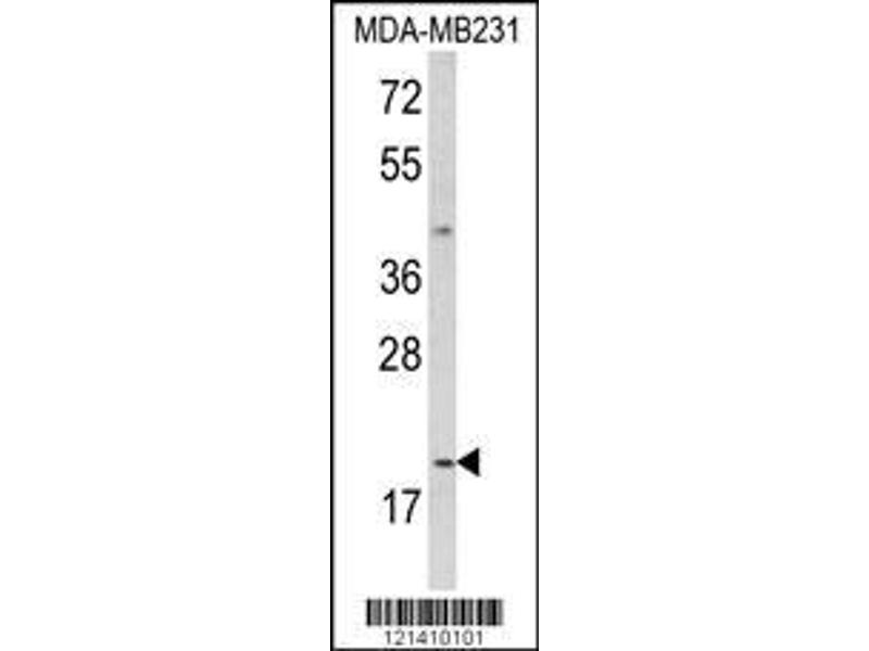 Western Blotting (WB) image for anti-Interleukin 12 alpha (IL12A) (AA 168-195), (C-Term) antibody (ABIN652744)