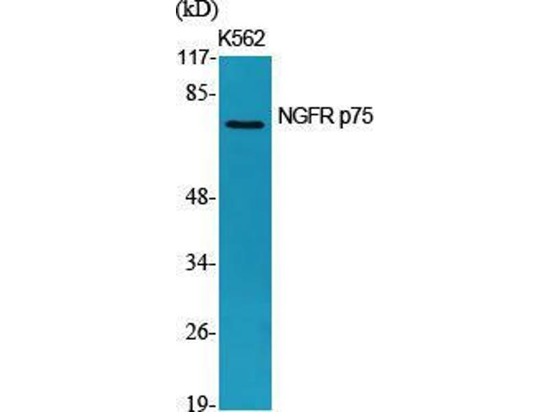 Western Blotting (WB) image for anti-NGFR antibody (Nerve Growth Factor Receptor) (Internal Region) (ABIN3185897)