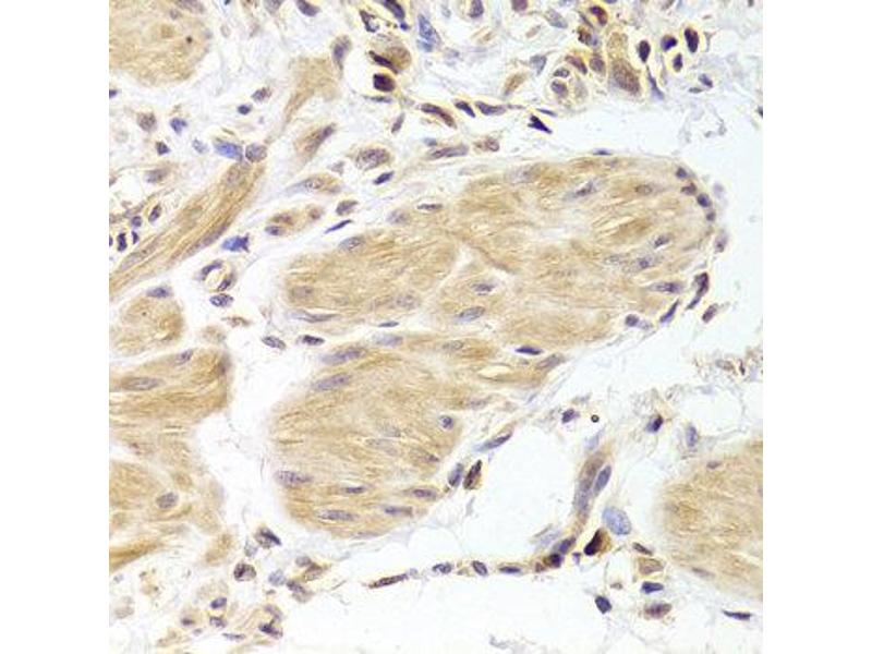 Immunohistochemistry (IHC) image for anti-Caspase 2 antibody (Caspase 2, Apoptosis-Related Cysteine Peptidase) (ABIN2561574)