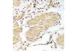 Immunohistochemistry (IHC) image for anti-Caspase 2, Apoptosis-Related Cysteine Peptidase (CASP2) antibody (ABIN2561574)