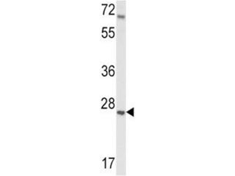 Western Blotting (WB) image for anti-Insulin-Like Growth Factor Binding Protein 4 (IGFBP4) (AA 66-92) antibody (ABIN3031355)