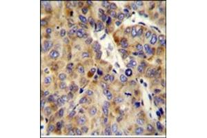 Immunohistochemistry (Paraffin-embedded Sections) (IHC (p)) image for anti-COL18A1 antibody (Collagen, Type XVIII, alpha 1) (AA 1314-1343) (ABIN951630)