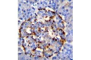 Image no. 2 for anti-Phospholipase A2, Group IID (PLA2G2D) (AA 112-138), (C-Term) antibody (ABIN954162)