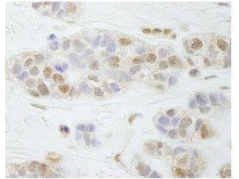Immunohistochemistry (Paraffin-embedded Sections) (IHC (p)) image for anti-Partner and Localizer of BRCA2 (PALB2) (AA 200-250) antibody (ABIN253057)