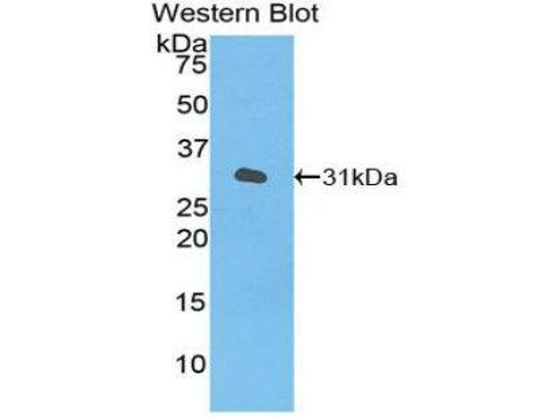 Western Blotting (WB) image for anti-Receptor Tyrosine Kinase-Like Orphan Receptor 1 (ROR1) (AA 470-707) antibody (ABIN1860464)