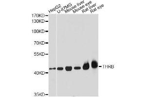 Western Blotting (WB) image for anti-Thyroid Hormone Receptor, beta (THRB) antibody (ABIN3022183)
