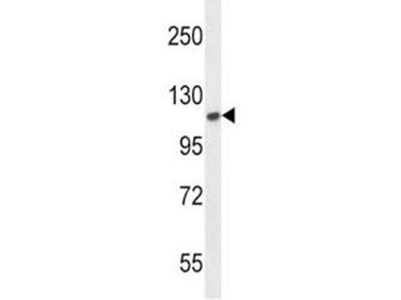 Western Blotting (WB) image for anti-Fibroblast Growth Factor Receptor 2 (FGFR2) (AA 7-37) antibody (ABIN3030951)