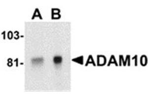 Image no. 1 for anti-ADAM Metallopeptidase Domain 10 (ADAM10) (AA 732-748) antibody (ABIN319033)