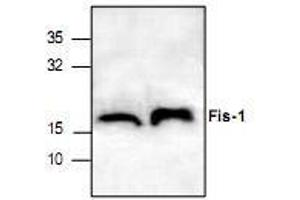 anti-Fission 1 (Mitochondrial Outer Membrane) Homolog (S. Cerevisiae) (FIS1) antibody