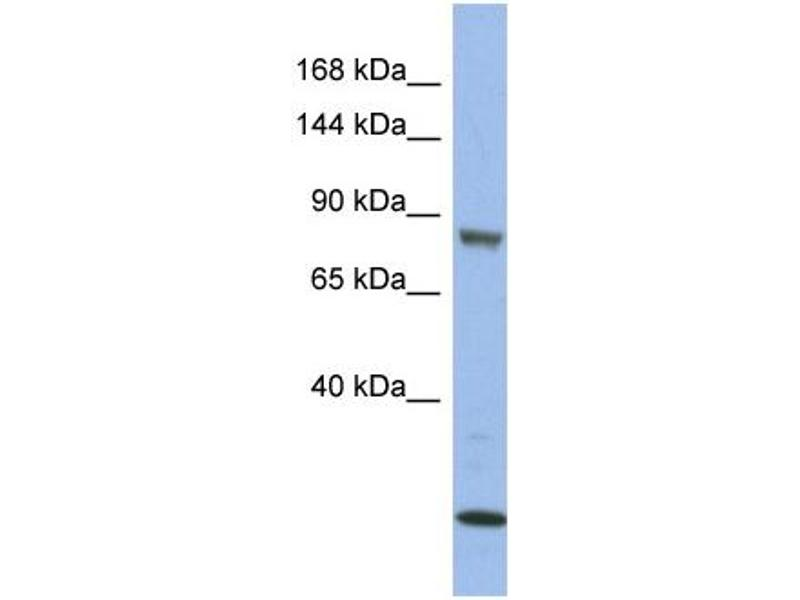 Western Blotting (WB) image for anti-MAP3K11 antibody (Mitogen-Activated Protein Kinase Kinase Kinase 11) (Middle Region) (ABIN2786655)