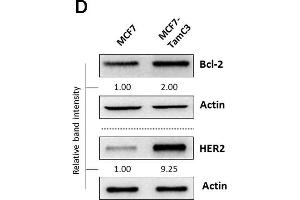Image no. 8 for anti-B-Cell CLL/lymphoma 2 (BCL2) (N-Term) antibody (ABIN2857047)
